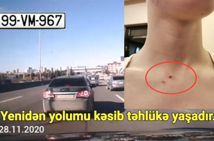 """Sürücü """"qoçuluq"""" edib yolu kəsdi, sonra isə azyaşlı uşağa xəsarət yetirdi — VİDEO"""