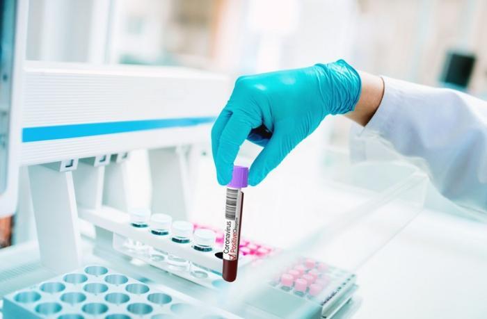 Azərbaycanda son sutkada koronavirusa yoluxanların sayı açıqlandı