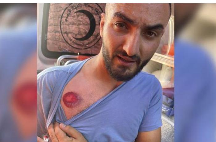 İsrail-Fələstin qarşıdurmasında türkiyəli jurnalist yaralandı