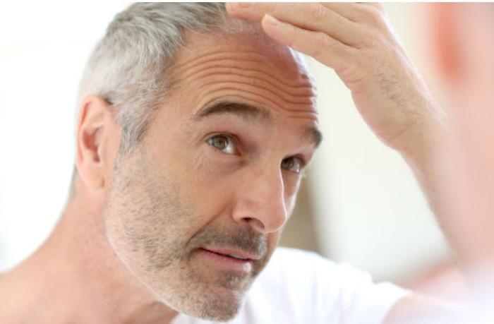 Erkən yaşda saç ağarmasının əsas səbəbləri — MƏSLƏHƏTLƏR