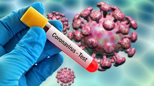 Məşhur azərbaycanlı aparıcı koronavirusa yoluxdu      — FOTO